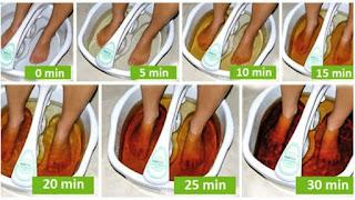 طريقة طرد السموم من الجسمك عن طريق القدمين بطريقة فعالة و مجربة... روعة !!!