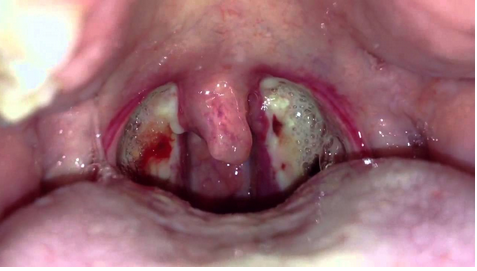It is Tonsillitis or Cancer - One tonsil is bigger than the other