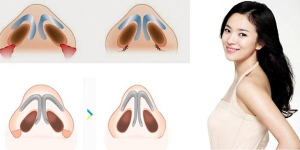 Nâng cao sống mũi không phẫu thuật gồm những phương pháp nào ?
