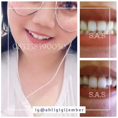 Foto gigi kelinci bunny smile gigi marmut jember pati jawa tengah ahli gigi pati juwana rembang todanan blora