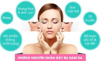Tìm hiểu nguyên nhân gây nám da để có cách phòng chống và trị nám