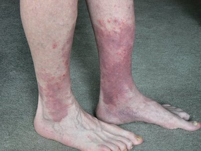 Bad Leg Circulation 47