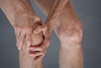 obat tradisional untuk penyakit osteoarthritis khasiatnya terbukti