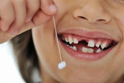 [Giải đáp] -  Mơ thấy xỉa răng bị gãy 4 cái răng khôn