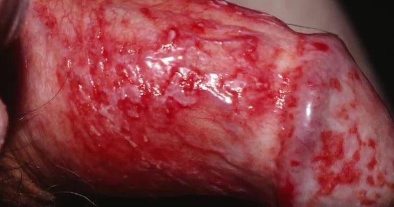 Balanitis Balanopostitis Inflamacion o Lesion en Pene