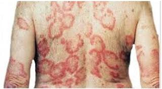 cara menyembuhkan penyakit kulit lepra yang aman dan mujarab