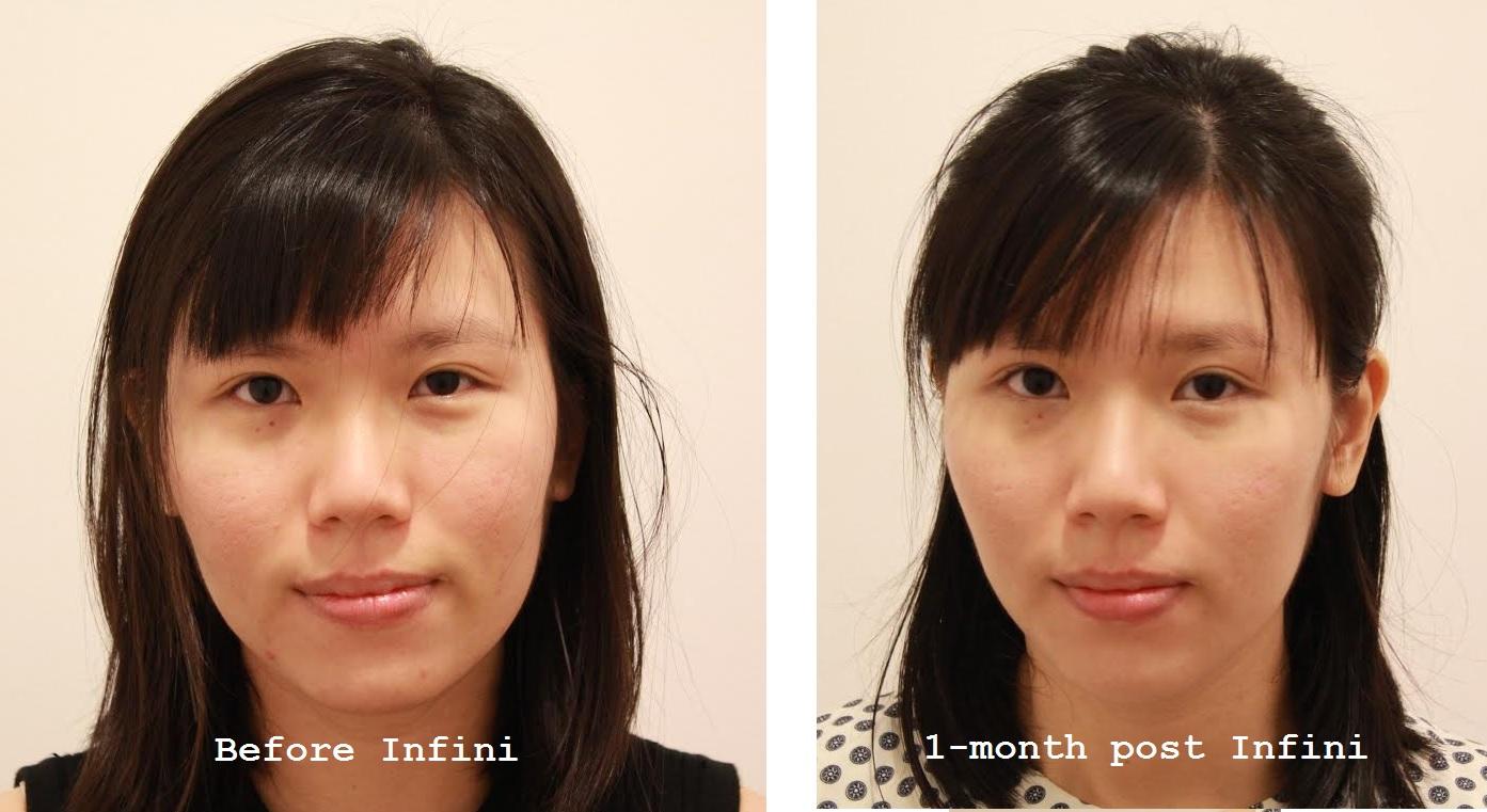 Has anyone used Infini RF? - Scar treatments - Acne org