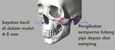 Wajah Bersinar Menyeluruh Dengan Reduksi Tulang Pipi Wonjin