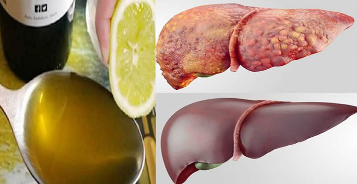 10 Foods That Help Heal A Sick Liver