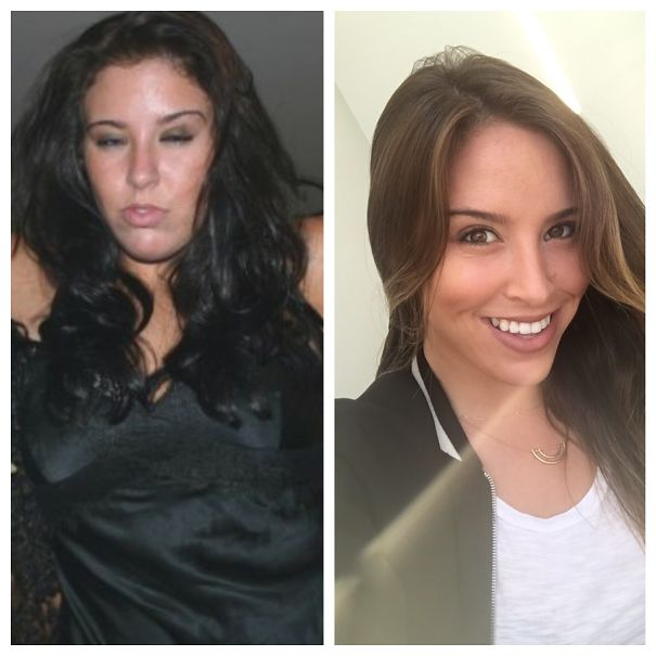 10+ Before-And-After Pics Show What Happens When You Stop Drinking - 4 Years Sober