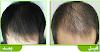 اعادة إنبات الشعر وإملاء الفراغات وتكثيفة فى فتره قليلة جدا