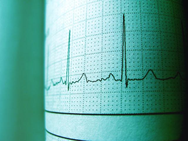 Gejala Awal Penyakit Jantung yang Wajib Diwaspadai