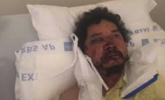 GoFundMe Account Established For Fruit Vendor Who Was Viciously Attacked