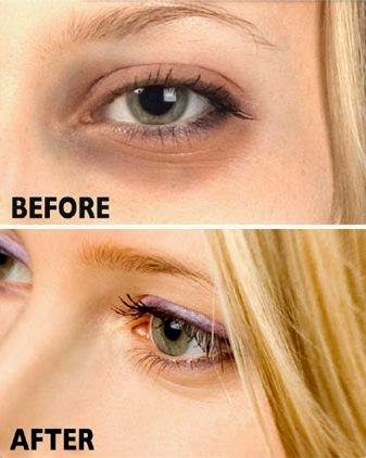 How to Get Rid of Dark Circles : WikiHealthBlog