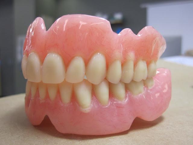 Hukum Memasang Gigi Palsu Dalam Islam, Bolehkah ?