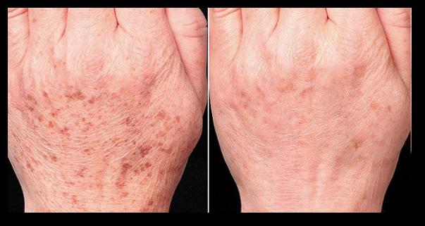 Varsta si pigmentarea pielii