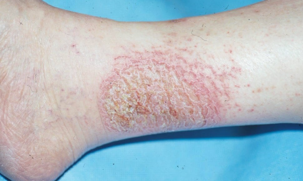 Photos Of Eczema On Adults Legs  Treatment For Eczema -9398