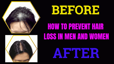 hair loss treatment for men ,how to get rid of hair loss,hair loss solution hair loss in women