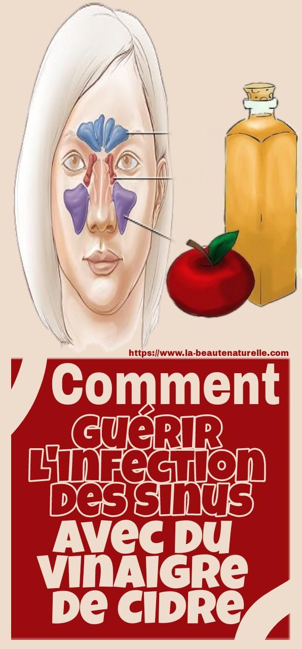 Comment guérir l'infection des sinus avec du vinaigre de cidre