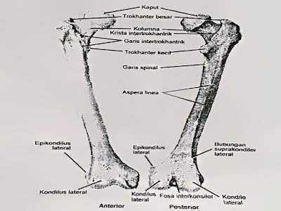 Gambar Definisi Fraktur Femur, Penyebab Dan Mengobati Fraktur Femur