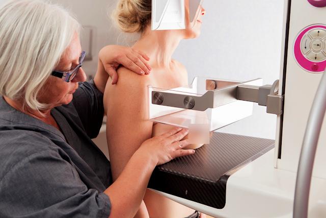 Apa Saja Persyaratan Mammografi Untuk Mendeteksi Dini Kanker Payudara?