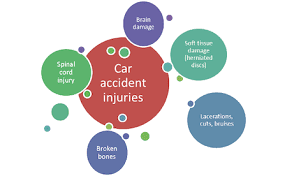 Types of Injuries after an Auto Accident