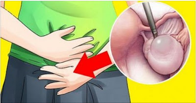 síntomas de quistes en los ovarios