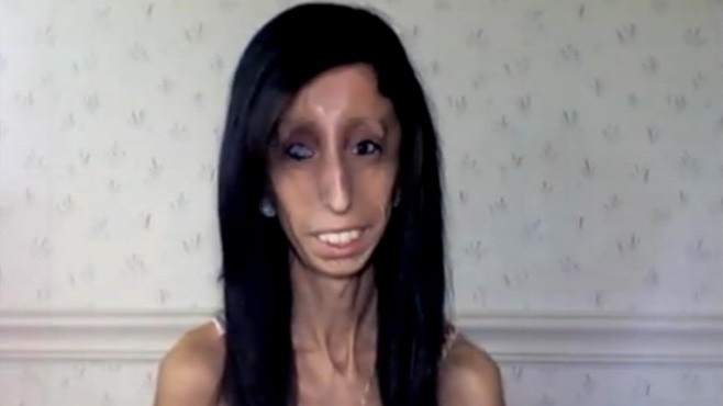 Ugliest Girl In The World 2013