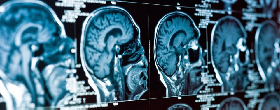Clermont Radiology S Medical Imaging Blog Some