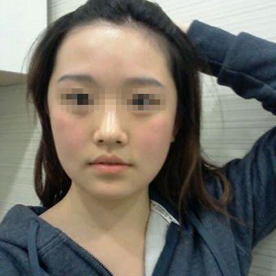 짱이뻐! - Goodbye Big Cheekbone And Square Face Line