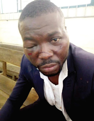 Lawyer Battered By Policemen While Defending Client, Wife