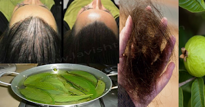 Guava Leaves Can 100 Stop Your Hair Loss And Make It Grow Like