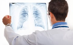 Symptoms Of Lung Cancer In Women, Could it Be Any Different With The Symptoms In Men?