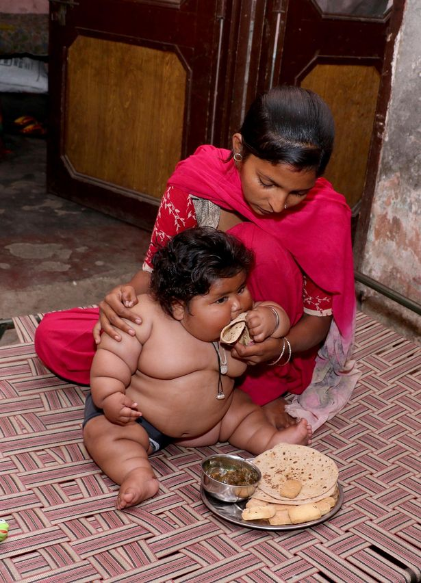 Morbidly obese eight months baby leaves doctors baffled