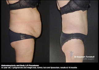 Liposuction Before And After: Prior to and After Liposuction