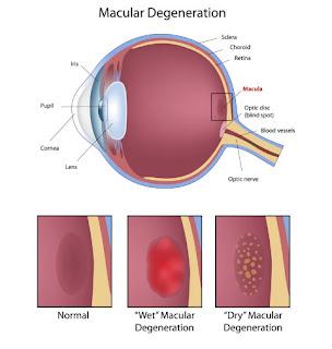 Come rimediare degenerazione maculare avanzata