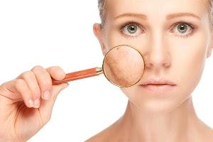 Vitamin Untuk Kulit Kering dan Keriput yang Bagus dan Efektif Agar kulit Lebih Sehat