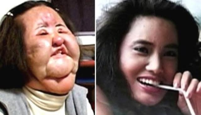 Kisah Lima Orang Yang Jadi Buruk Rupa Akibat Operasi Plastik Yang Mereka Jalani