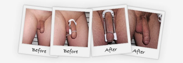Testimoni pro extender, Alat Pembesar penis, alat pemanjang penis