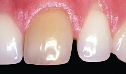 resorption interne dentaire traitement