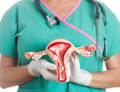 Pengobatan Tradisional Penyakit Kista Ovarium