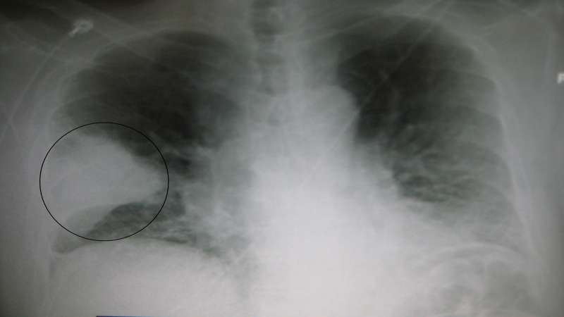 chest xray showing pneumonia