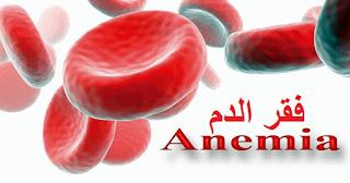 فقر الدم الانيميا fa9r aldam
