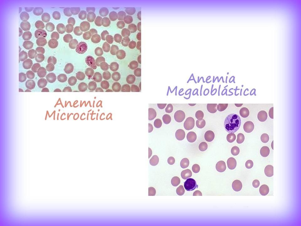anemia megaloblastica caracteristicas clinicas