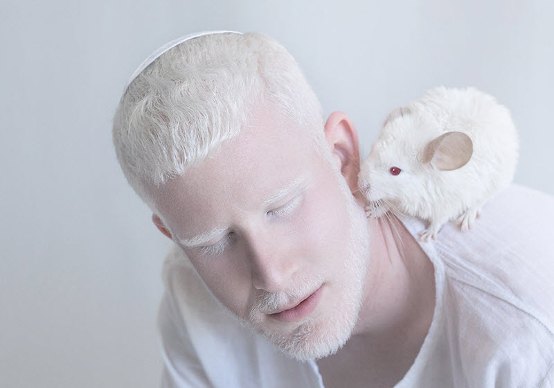 Albinism in Humans and Animals