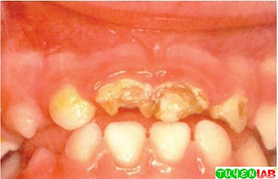 Central maxillary incisors with severe tooth decay, and bilateral maxillary lateral incisors with demineralized area near gingival line (yellow-brownish discolorations).
