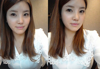 sesudah operasi plastik hidung artis Korea