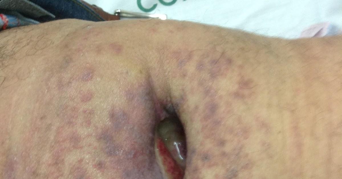 Enfermera me inyecta me toka la pija y yo le toco el culo - 2 part 5