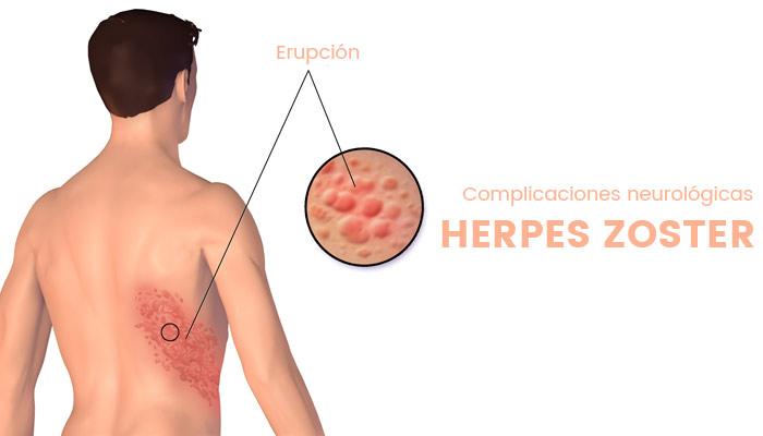 komplikasi herpes zoster