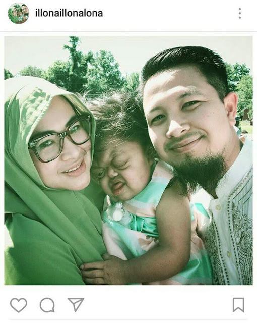 Suami Istri Rupawan dan Anaknya yang Buta Tuli